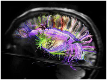 brightly colored image of a brains neural pathways