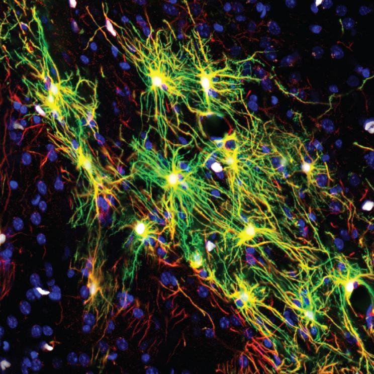 Photo image of human astrocytes