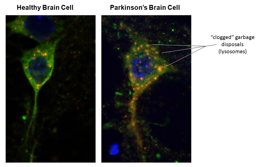 Photos of a healthy brain cell and a brain cell affected by Parkinson's