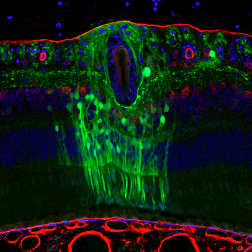 Cross section of a retina stained red, green, and blue