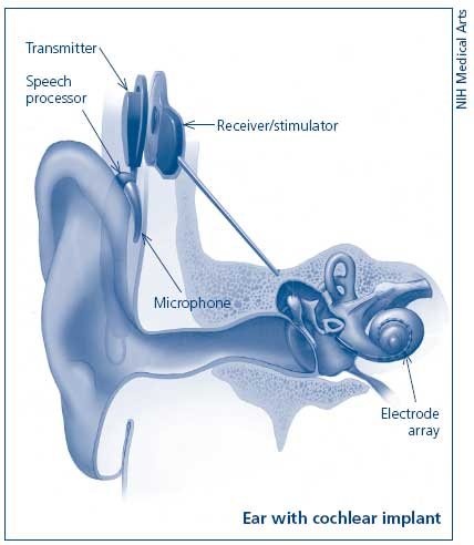Artistic rendering of an ear with a cochlear implant