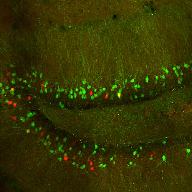 Image of the hippocampus
