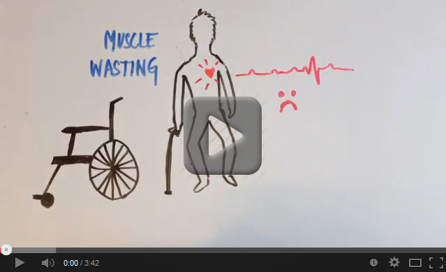Myotonic Dystrophy Video screenshot