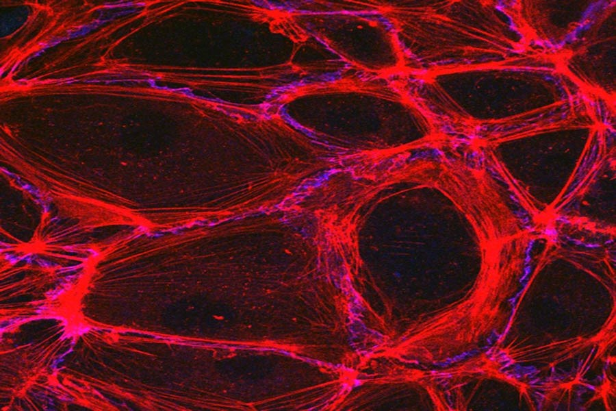 Snapshots Of Life  Visualizing Blood Vessels  U2013 Nih