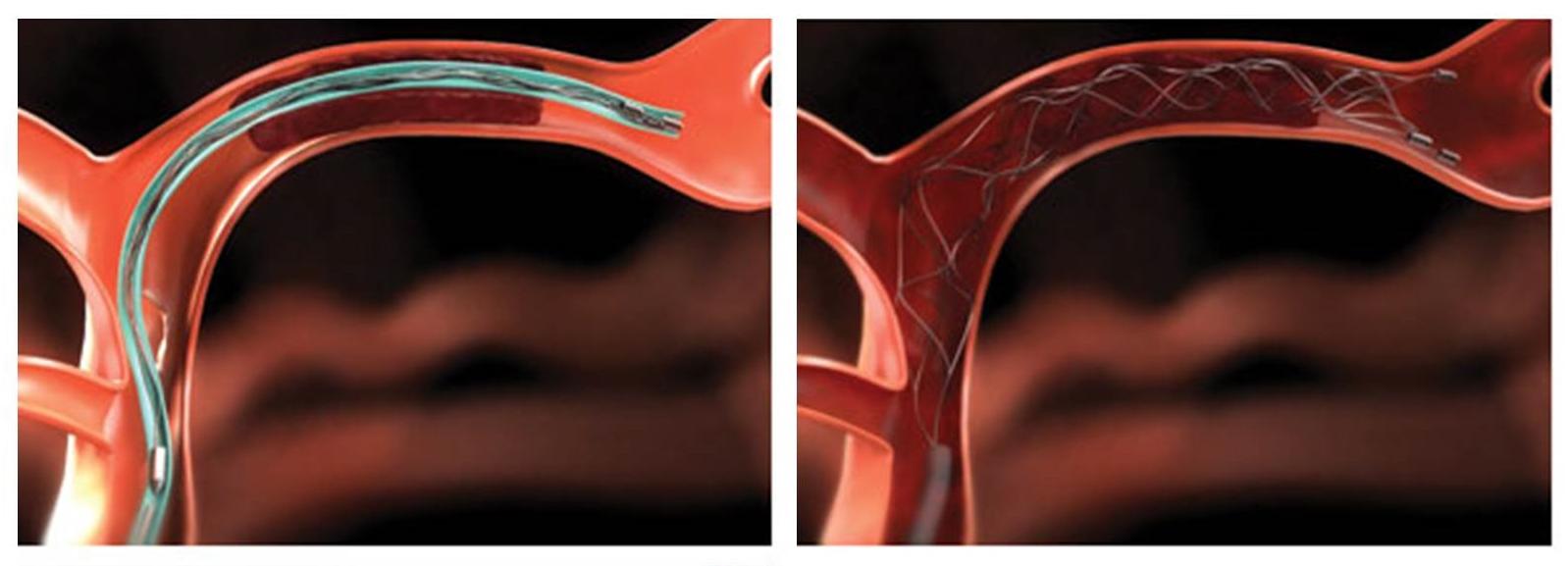Schematic of clot retriever
