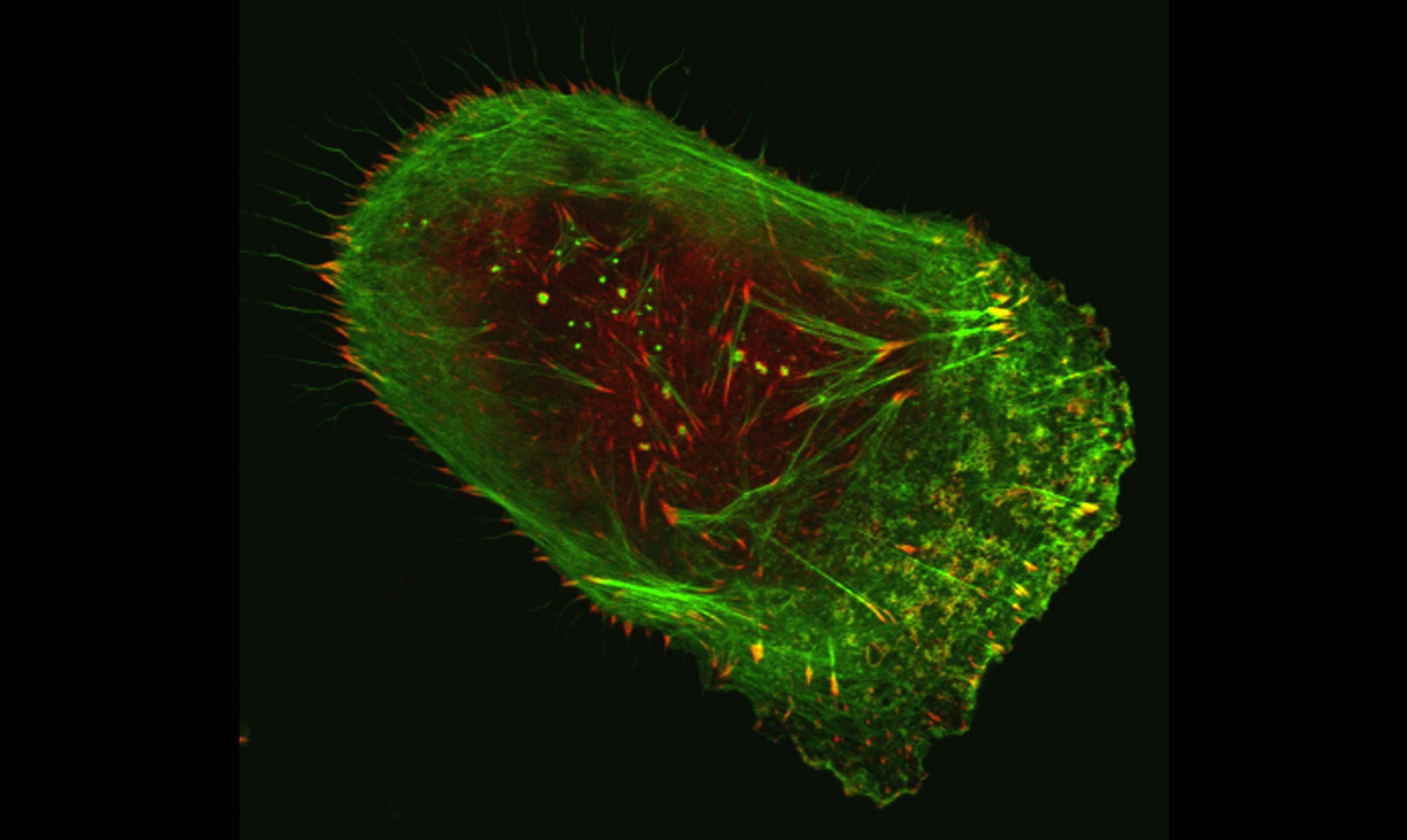 Melanoma cell