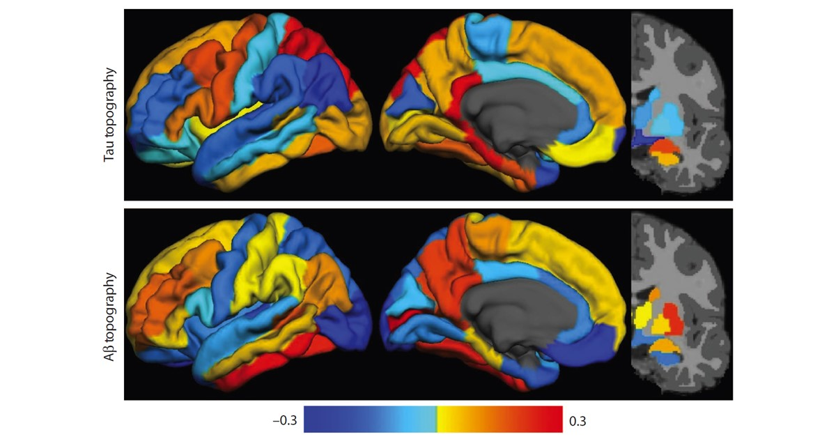 PET imaging of brains affected by Alzheimer's disease