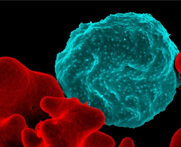 Red blood cell infected with malaria-causing parasites