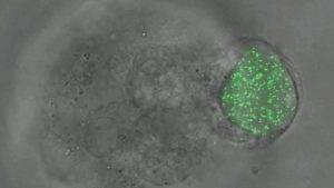 Glowing nanoparticles seen inside a cell