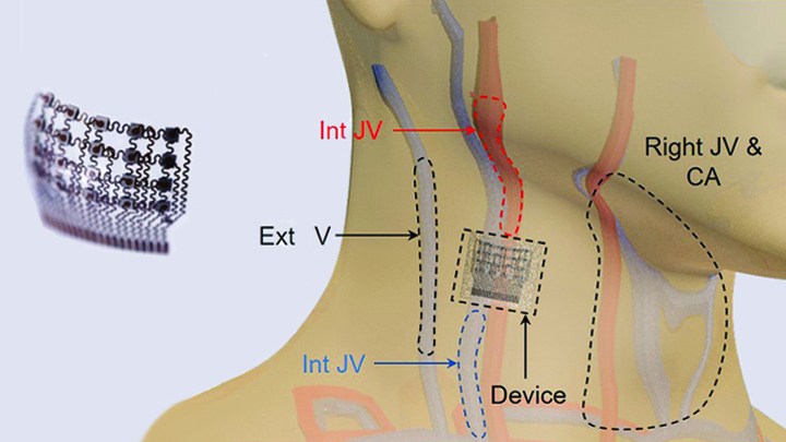 Placement of the blood pressure patch