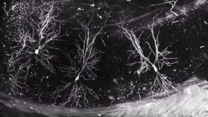 Pyramidal neurons in the cortex (layer 5) and hippocampus