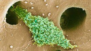 Kupffer cells