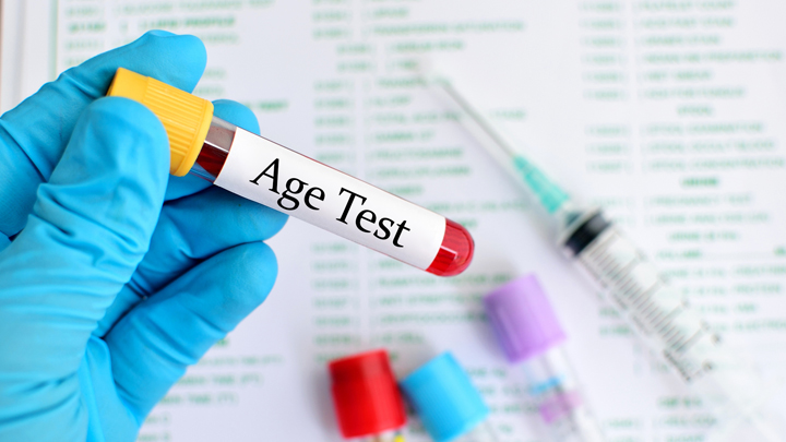 Blood Test for Aging