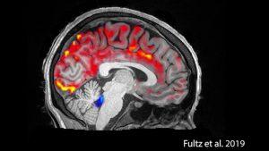 Brain Wash Video