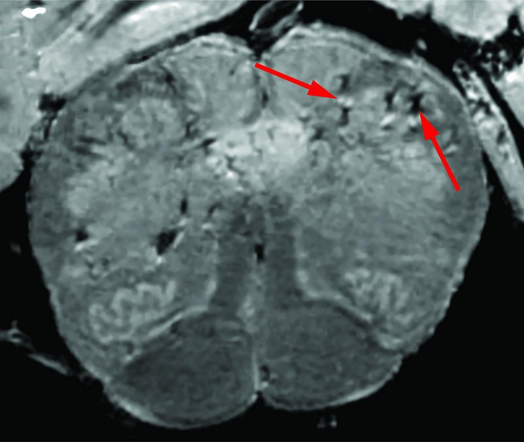 MRI of a brain damaged by COVID-19
