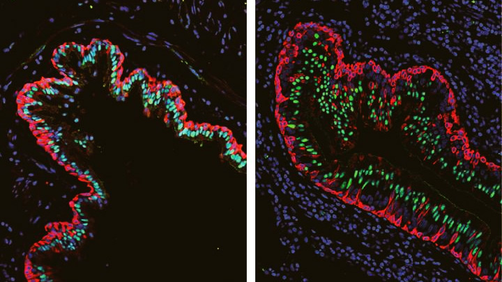 Healthy airways (left) show well-defined layers of ciliated cells (green) and basal stem cells (red). In airways affected by cystic fibrosis (right), the layers are disrupted, and a transitioning cell type (red and green in the same cell).