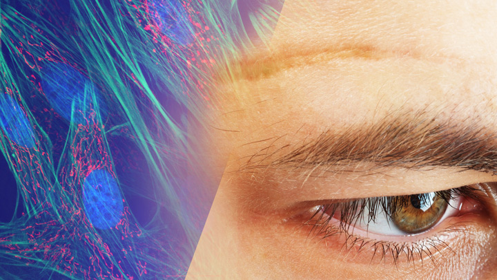 Fibroblast microscopy and photo of a scar on a person's forehead